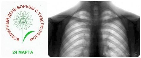 Всемирный день борьбы с туберкулезом - 24 марта 2019